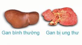 Ung thư gan – Những nguyên nhân gây ung thư gan bạn cần biết