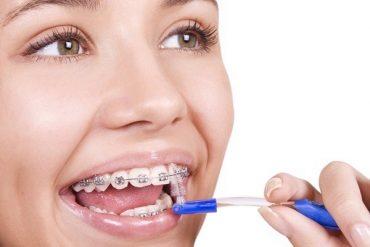 Top 6 yếu tố ảnh hưởng thời gian niềng răng