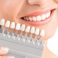 Bọc răng sứ có tốt không ? Ưu và nhược điểm của bọc răng sứ